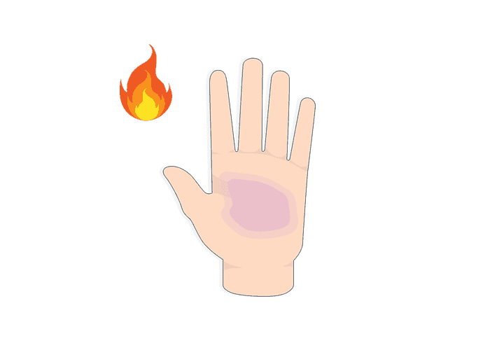 illustrations of a hand with burns