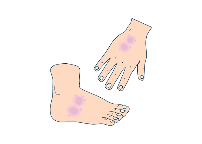 illustrations of a hand and foot with eczema
