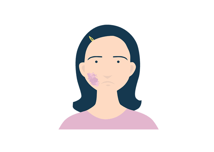 illustrations of a face with melasma