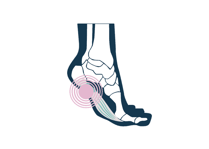 illustrations of a foot with a plantar fasciitis