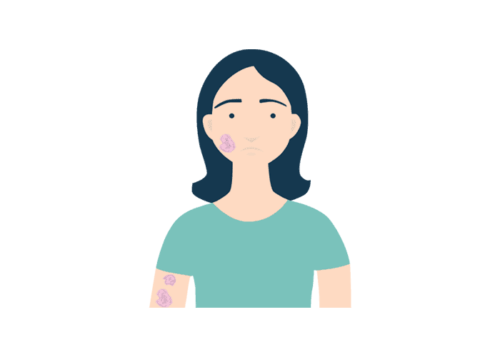 illustrations of a body and face with psoriasis