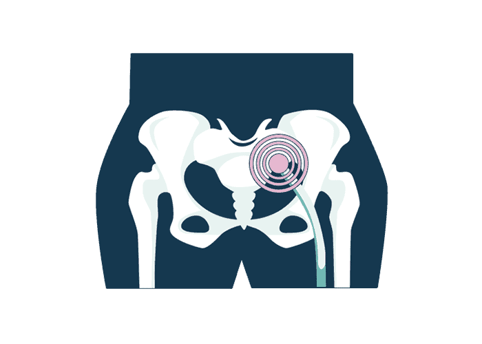 illustrations of nerve with sciatica